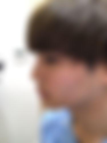 メイリーの施術レポート,鼻,鼻骨幅寄せ,鼻の骨,ハンプ鼻(わし鼻)修正,鼻先を細く,鼻尖形成耳介軟骨,キム・ハンジョの画像