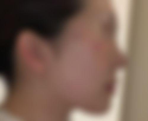 メイリーの施術レポート,唇,口角挙上,人中を短く,人中短縮術(リップリフト),口角を上げる,ジヨンフンの画像