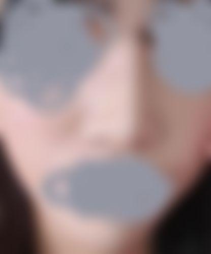 メイリーの施術レポート,鼻,鼻尖縮小術,隆鼻(鼻を高く),鼻を小さく,鼻先を細く,鼻尖形成耳介軟骨,鼻翼基部プロテーゼ(貴族手術),軟骨(鼻翼基部),隆鼻耳介軟骨,隆鼻鼻中隔軟骨,キムドンソクの画像