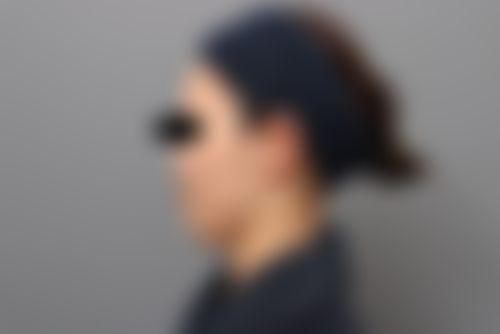 メイリーの施術レポート,額,豊胸,輪郭,胸,豊胸自身脂肪注入,額形成脂肪注入,加藤敏次の画像