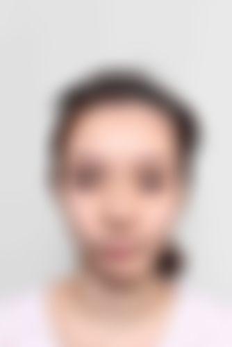 メイリーの施術レポート,目,眼瞼下垂の画像