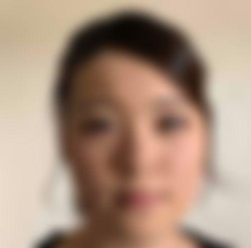 メイリーの施術レポート,目,鼻,鼻尖縮小術,目頭切開,隆鼻(鼻を高く),隆鼻ゴアテックス,目を大きく,鼻を小さく,パク・クァンミンの画像