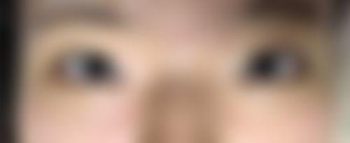 メイリーの施術レポート,目,目頭切開,目を大きく,宮里,裕(退職済)の画像