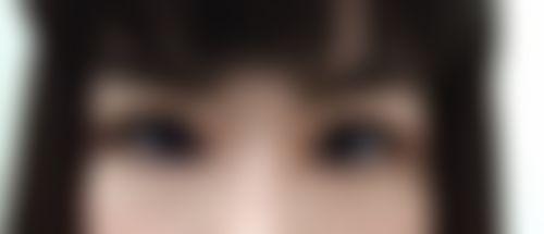 メイリーの施術レポート,目,なみだ袋形成,なみだ袋ヒアルロン酸,不明の画像
