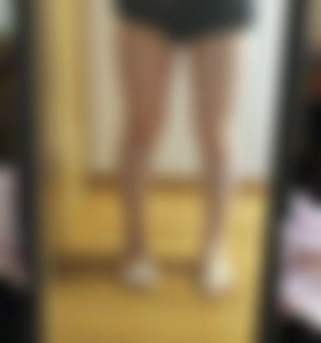 メイリーの施術レポート,脂肪吸引,脂肪吸収,脂肪吸引(太もも)の画像