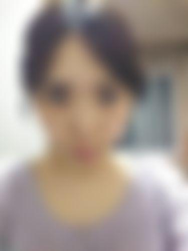 メイリーの施術レポート,目,目尻切開,目を大きく,たれ目・グラマラスラインの画像