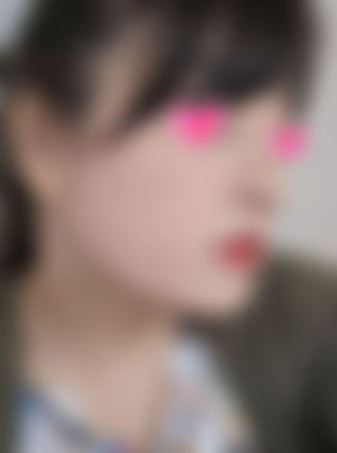 メイリーの施術レポート,鼻,鼻尖縮小術,鼻中隔,隆鼻(鼻を高く),隆鼻プロテーゼ,鼻を小さく,鼻先を細く,鼻尖形成耳介軟骨,鼻中隔延長耳介軟骨,隆鼻鼻中隔軟骨,鼻尖縮小術・糸,パク・クァンミンの画像