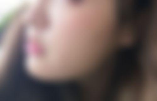 メイリーの施術レポート,脂肪吸引,脂肪吸収,脂肪吸引(顔),ソ先生の画像