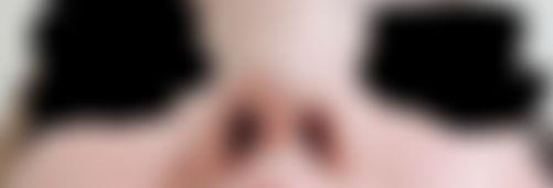 メイリーの施術レポート,鼻,鼻中隔,隆鼻(鼻を高く),隆鼻プロテーゼ,鼻先を細く,鼻尖形成耳介軟骨,鼻中隔延長耳介軟骨,中北信昭の画像