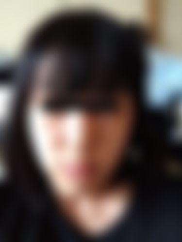 メイリーの施術レポート,鼻,鼻中隔,隆鼻(鼻を高く),隆鼻プロテーゼ,鼻先を細く,鼻尖形成耳介軟骨,鼻中隔延長耳介軟骨,鼻の修正,プロテーゼ除去,ソンヒョンソクの画像