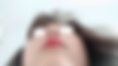 メイリーの施術レポート,鼻,鼻中隔,鼻中隔軟骨,鼻の骨,ハンプ鼻(わし鼻)修正,鼻先を細く,鼻中隔延長耳介軟骨,鼻尖形成真皮移植,キムジヨンの画像