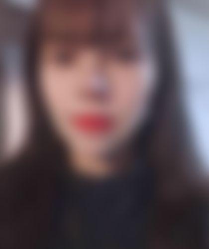 メイリーの施術レポート,頬骨,輪郭,頬骨縮小(頬骨骨切り),頬骨縮小(頬骨削り),イヒョンギョの画像