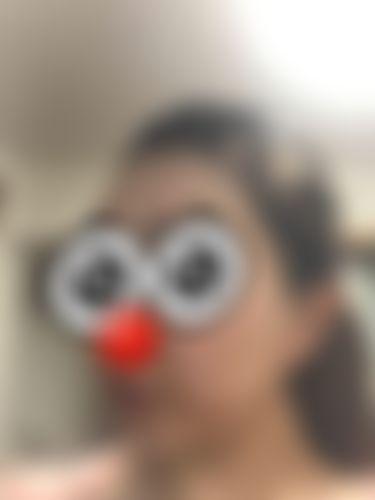 メイリーの施術レポート,額,唇,輪郭,額形成脂肪注入,唇を大きく,口唇拡大術脂肪注入,中居の画像
