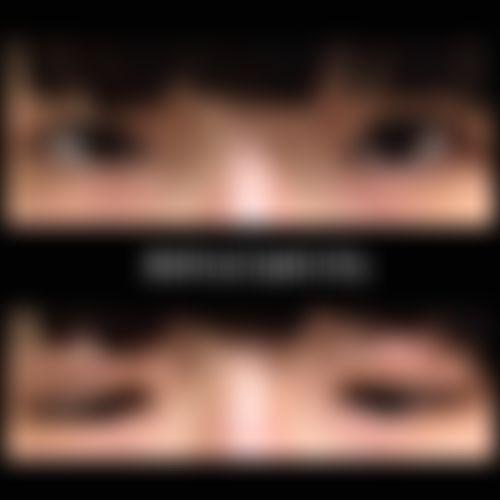 メイリーの施術レポート,目,埋没法,眼瞼下垂,二重まぶた,遠藤剛史の画像