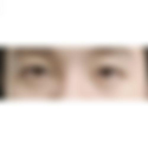メイリーの施術レポート,目,埋没法,眼瞼下垂,二重まぶた,目の修正,キム・ジョンドの画像