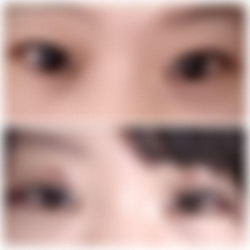 メイリーの施術レポート,目,目尻靭帯移動術,アゴ,全切開法,輪郭,二重まぶた,顎ボトックス,目を大きく,呂秀彦の画像