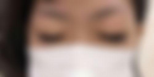 メイリーの施術レポート,目,目頭切開,目を大きく,高橋,金男の画像