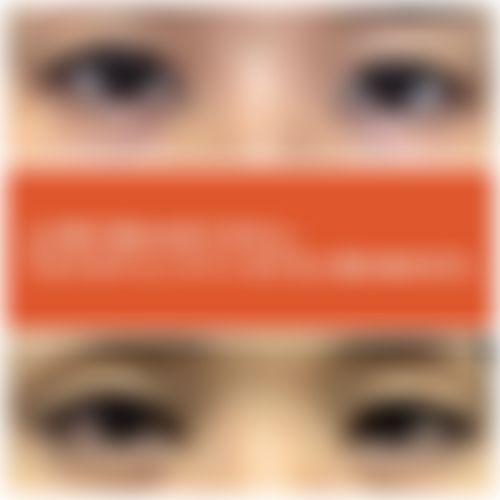 メイリーの施術レポート,目,全切開法,二重まぶた,眼瞼下垂(腱膜縫縮法),眼瞼下垂(目つき矯正),伊藤,康平の画像