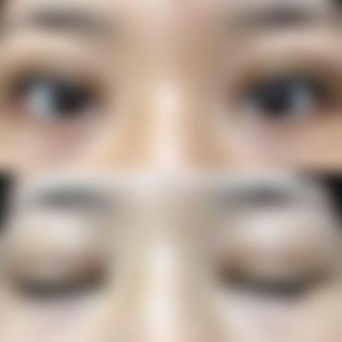 メイリーの目,全切開法,二重まぶたの画像