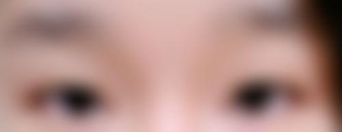 メイリーの施術レポート,目,目尻切開,目頭切開,二重まぶた,目を大きく,眼瞼下垂(挙筋短縮法),目の修正,自然癒着法,蒙古ひだ形成(目頭切開修正),眼瞼下垂(目つき矯正)の画像