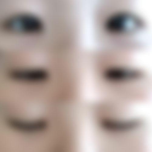 メイリーの施術レポート,目,全切開法,二重まぶた,津田智幸の画像