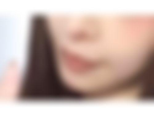 メイリーの口角挙上,人中を短く,人中短縮術(リップリフト),口角を上げるの画像
