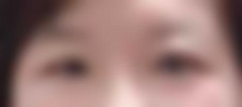 メイリーの施術レポート,目,全切開法,目頭切開,二重まぶた,たるみ・クマ取り,上眼瞼脱脂(上まぶたの脱脂),目を大きく,目の修正,眼瞼下垂(目つき矯正),チェ・ジェホの画像