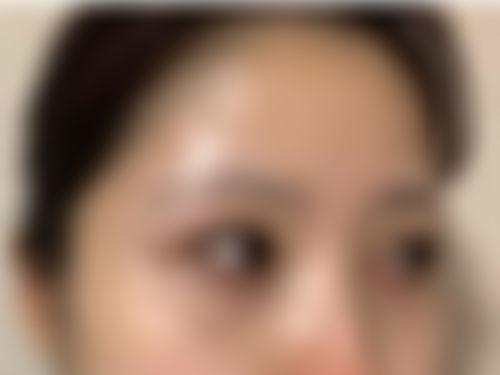 メイリーの施術レポート,たれ目・グラマラスライン,脂肪再配置,逆まつげ修正の画像