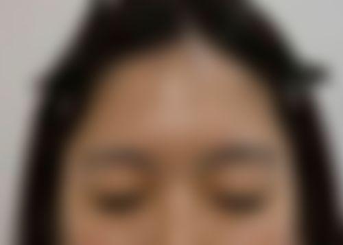 メイリーの施術レポート,目,埋没法,二重まぶた,深堀純也の画像