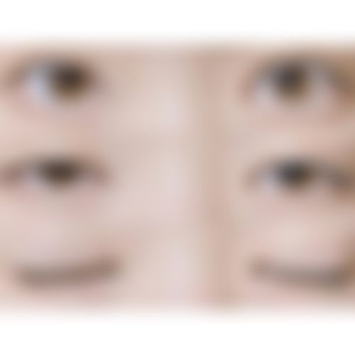 メイリーの施術レポート,目,二重まぶた,経結膜的埋没法(クイックコスメティーク法),横谷仁彦の画像