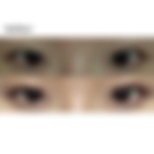 メイリーの施術レポート,目,目尻切開,全切開法,目頭切開,二重まぶた,目を大きく,たれ目・グラマラスライン,キムチャンユンの画像