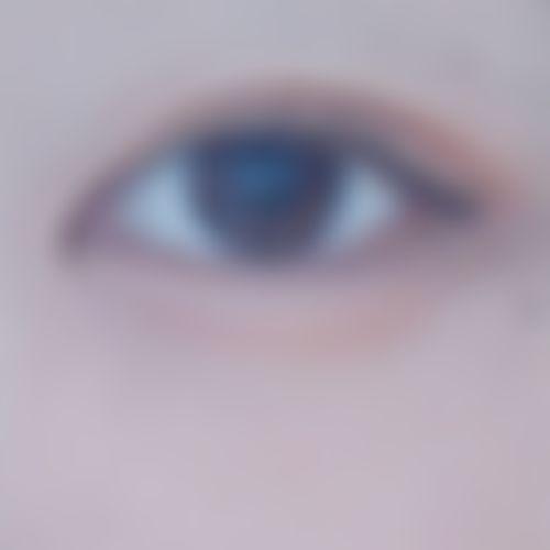 メイリーの目,埋没法,二重まぶたの画像