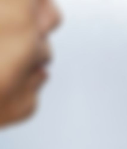 メイリーの施術レポート,鼻,唇,口角挙上,人中を短く,人中短縮術(リップリフト),鼻先を細く,口角を上げる,鼻尖形成真皮移植,中徳太郎の画像
