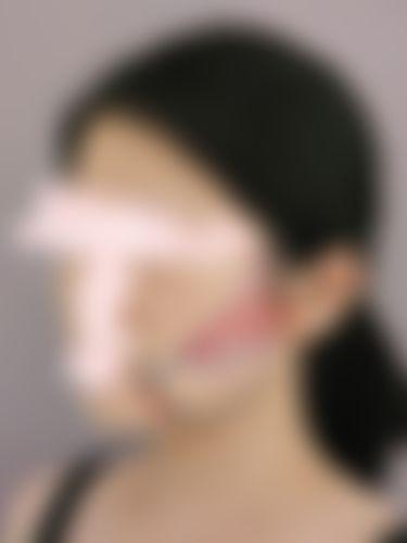 メイリーの施術レポート,脂肪吸引,脂肪吸引(顔),深堀純也の画像
