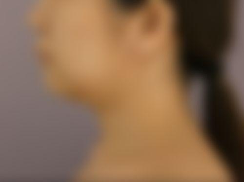 メイリーの施術レポート,アゴ,脂肪吸引,顎ボトックス,脂肪吸引(顔),スレッド(糸)リフト,アンチエイジング,ホホ,深堀純也の画像