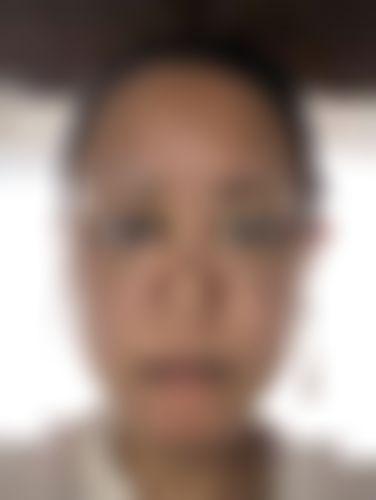 メイリーの施術レポート,脂肪吸引,エラ,エラボトックス,輪郭,脂肪吸引(顔),アンチエイジング,バッカルファット除去の画像