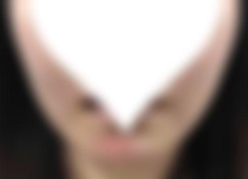 メイリーの施術レポート,唇,エラ,エラボトックス,輪郭,口角ボトックス,スレッド(糸)リフト,アンチエイジング,口角を上げる,鎌田紀美子の画像