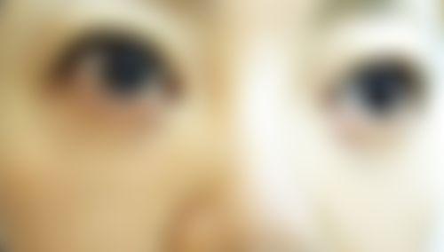 メイリーの施術レポート,イオン導入,レーザートーニング,美容皮膚,美白・美肌,山本周平の画像
