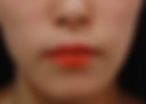 メイリーの施術レポート,唇,口角を上げるの画像