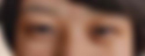 メイリーの施術レポート,目,全切開法,二重まぶた,眼瞼下垂(挙筋前転法),眼瞼下垂(目つき矯正),西尾謙三郎の画像