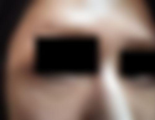 メイリーの施術レポート,目,たるみ・クマ取りの画像