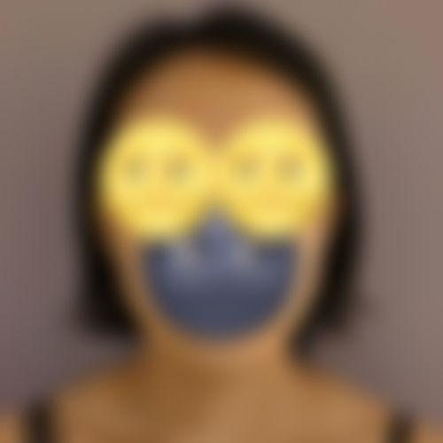 メイリーの施術レポート,脂肪吸引,脂肪吸引(顔),スレッド(糸)リフト,アンチエイジング,深堀純也の画像