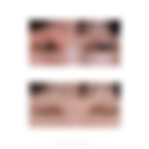 メイリーの目,全切開法,目頭切開,二重まぶた,目を大きくの画像