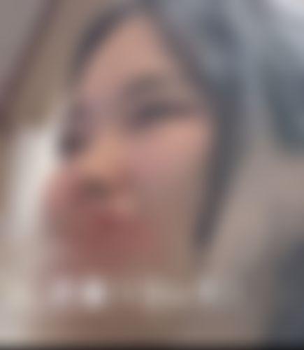 メイリーの施術レポート,鼻,隆鼻術,鼻尖縮小術,鼻中隔延長術,プロテーゼ(I型),鼻中隔軟骨,プロテーゼ,眉間プロテーゼ,ハンプ切除(わし鼻修正),Hee-Joon,Minの画像