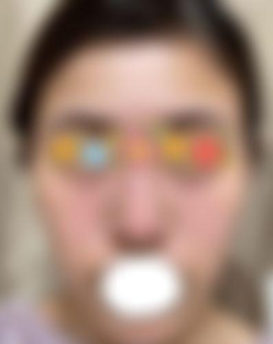 袋 痛い 片目 涙 腫れ