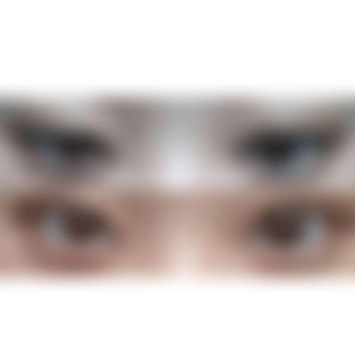 メイリーの施術レポート,眼瞼下垂,二重まぶた,イ・ジウォンの画像