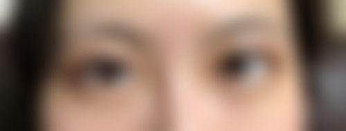 メイリーの施術レポート,二重,埋没法,埋没,二重まぶた,二重整形,埋没手術,目,二重,埋没法,津田智幸の画像