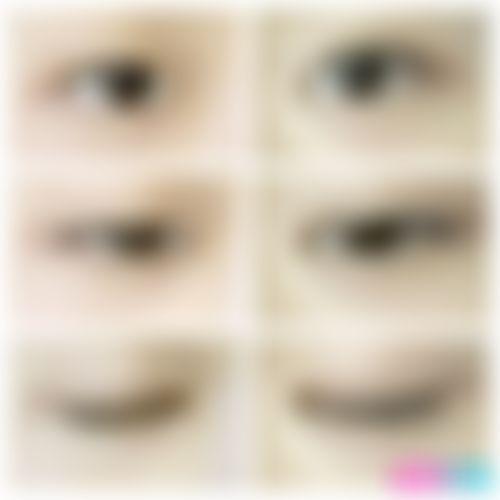 メイリーの施術レポート,目,目尻切開,二重,埋没法,目頭切開,眼瞼下垂(目つき矯正),下眼瞼下制法(たれ目・グラマラスライン形成術),蒙古ひだ形成(目頭切開修正),キム室長の画像