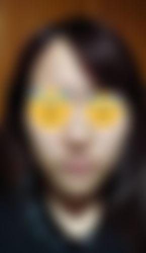 メイリーの施術レポート,頬骨縮小,頬骨体部減少術,頬形成術(ドールチーク),脂肪注入,頬の画像