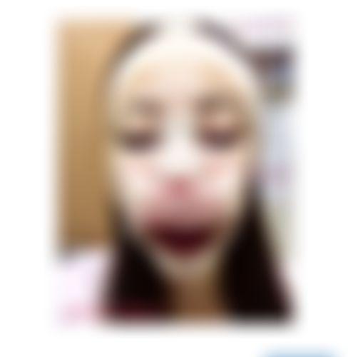 メイリーの施術レポート,目頭切開,鼻整形,韓国整形,唇フィラー,糸リフト,目整形,顎プロテーゼ,MINA整形外科,ミナ整形外科,bmmost,デュアル切開,鼻先軟骨移植,ヒアルロン酸除去,シリコン,鼻軟骨削り,顎整形,バッカルファット除去,目,目尻切開,鼻,隆鼻術,アゴ,プロテーゼ(I型),ヒアルロン酸,目頭切開,フェイスリフト,唇,ヒアルロン酸注入,涙袋形成,プロテーゼ,口角挙上,口唇拡大術,アヒル口形成,ボトックス注入,糸,軟骨細片,チャ院長の画像